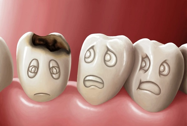 Răng bị sâu gây đau đớn cho người bệnh